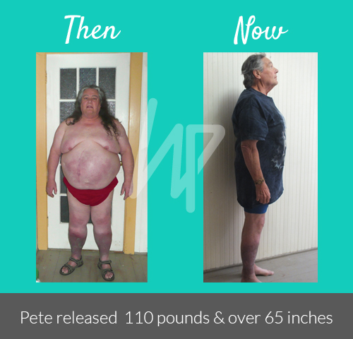 Before-After_Pete